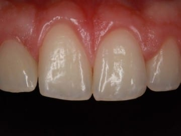 closeup of an upper set of teeth after treatment at Signature Dentistry of Rochester