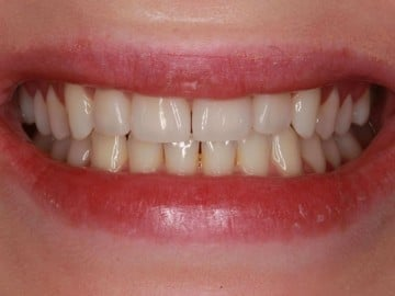 closeup of a woman's smile before treatment with Rochester Hills dentist Dr. Matthew Wolfe