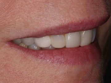 closeup of a smile after treatment with Dr. Matthew Wolfe