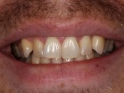 closeup of a man's smile before treatment with Rochester Hills dentist Dr. Matthew Wolfe