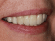 Profile of a woman after treatment with Dr. Matthew Wolfe