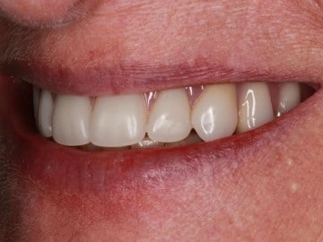 profile of a patients smile after treatment with Dr. Matthew Wolfe