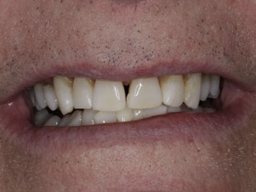 Closeup of a female's smile showing shortened teeth and an uneven smile
