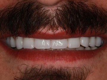 closeup of a man's smile after treatment with Rochester Hills dentist Dr. Matthew Wolfe