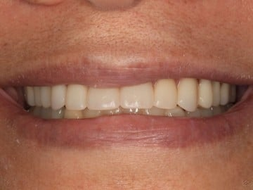 Closeup view of a female's smile before treatment with Dr. Matthew Wolfe of Signature Dentistry of Rochester
