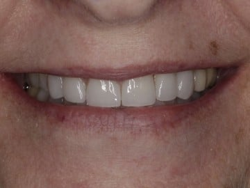 Closeup profile of a female's smile before treatment at Signature Dentistry of Rochester