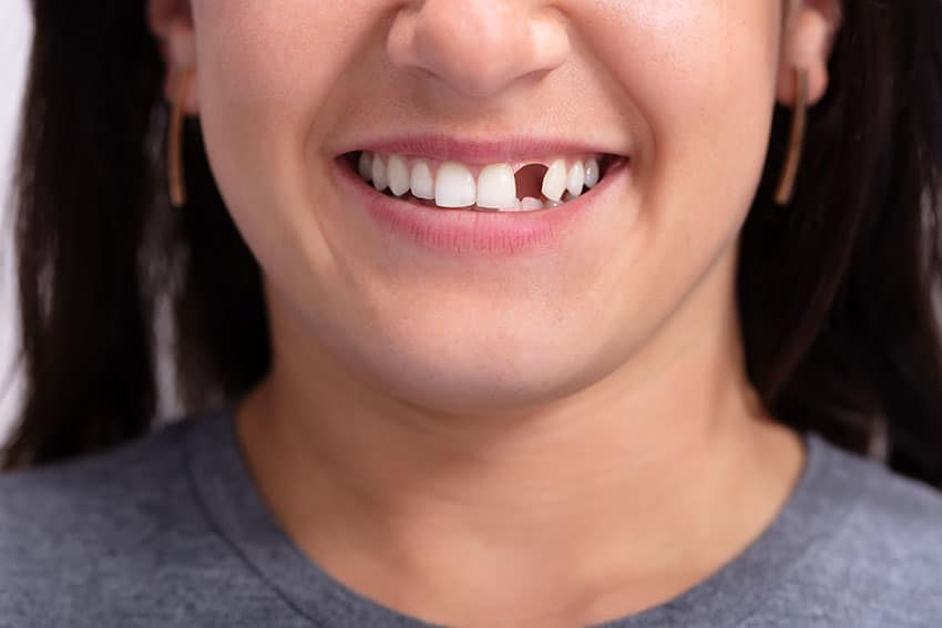 closeup of a woman's smile showing a missing tooth in the front of her mouth