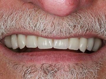 after implant dentures